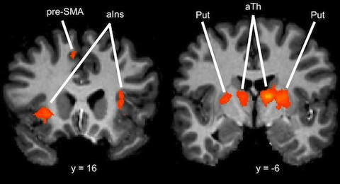 "Brain areas specifically activated by the tactile ""reading"" task in people who had trained on it"