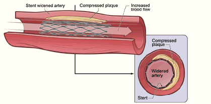 Possible diabetes drug/stent interaction
