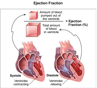 Normal ejection fraction (for someone without heart disease) = 55 to 70 percent HFpEF = anyone experiencing symptoms but with ejection fraction higher than 50 Heart failure with reduced ejection fraction (HFrEF) = less than 40 percent