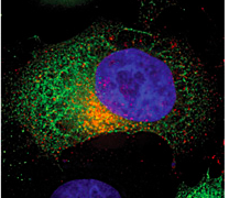 Red is HIV Env, and green is the protein that interacts with its tail, FIP1C. Where they are present together is yellow, and blue is the HeLa cell nucleus.