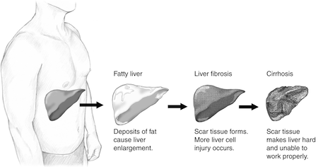Progression of liver disease, from NIDDK.  This article is a guest post from Kristina Bargeron Clark, a graduate student at Emory and communications chair for Women in Bio-Atlanta. Her website is www.inkcetera.org.