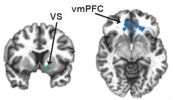 "Emory researchers have found that high inflammation in depression is linked to a ""failure to communicate"" between two parts of the brain: the ventral striatum (VS, vertical cross section) and the ventromedial prefrontal cortex (vmPFC, horizontal)."