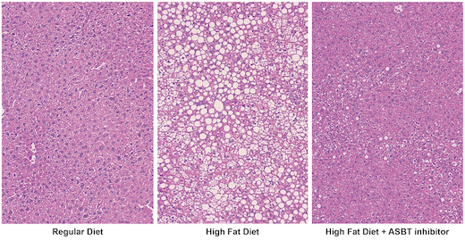 fatty-liver-triad-520 | Lab Land